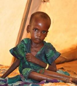 fot. Cate Turton/Department for International Development/ Niedożywione dziecko w obozie Dolo Ado w Etiopii, przy granicy z Somalią